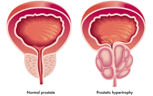 Benign Prostatic Hyperplasia (BPH) Treatment in South Africa