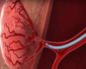 Prostatic Artery Embolization in South Africa