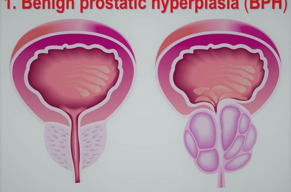 Benign Prostate Hyperplasia Treatment (BPH)